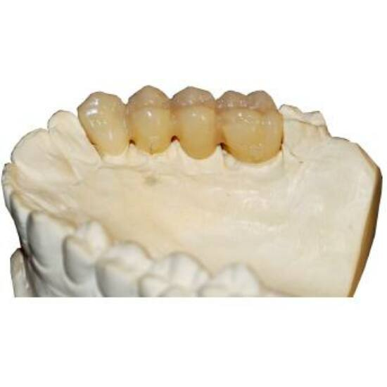 Pressing Smile-Cam Multilayer 98,5 H16 A1